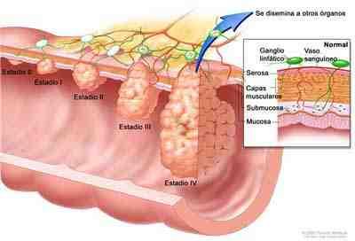 diseminacion-cancer-colon