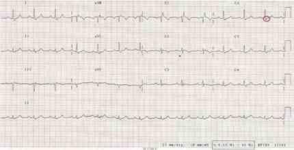 displasia-arritmogenica-ventriculo-derecho