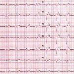 El conocimiento del electrocardiograma (EKG) como herramienta primordial. A propósito de un caso