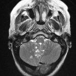 encefalitis-Hashimoto