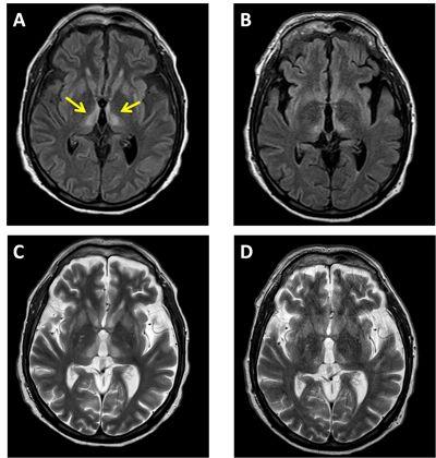 encefalopatia-wernique-sindrome-percheron.