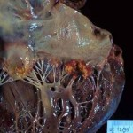 Septicemia y endocarditis post hemodiálisis. Caso clínico
