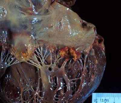 endocarditis-valvular-vegetacion