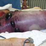 Gangrena gaseosa