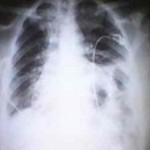 Hernia diafragmática izquierda congénita. Caso clínico