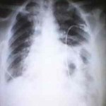 hernia-diafragmatica-congenita