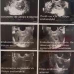 Usos de la histerosonografía o sonohisterografía