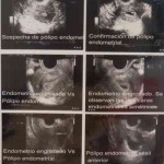 histerosonografia-sonohisterografia