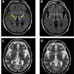 infarto-talamico-bilateral-sindrome-de-Percheron