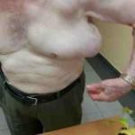 Lipoma en región axilar. Presentación de un caso clínico