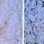 Proctalgia y rectorragia secundaria a melanoma maligno primario colorrectal. A propósito de un caso