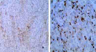 melanoma-colorrectal-anatomia-patologica