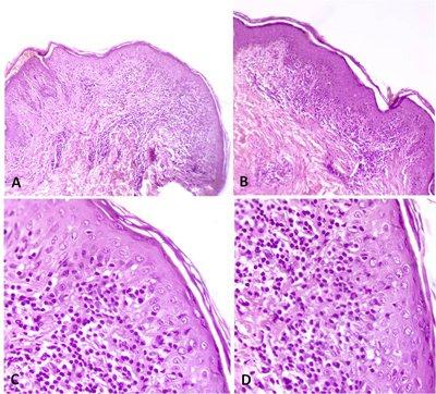 micosis-fungoide-anatomia-patologica