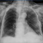Neumotórax secundario asociado a Enfisema Subcutáneo severo: Reporte de un caso