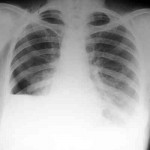 Neumotórax iatrogénicos raros. Se revisa bibliografía y se presenta un caso por aspiración con aguja fina de nódulo de mama