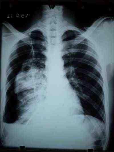neumotorax-tuberculosis-cavernas