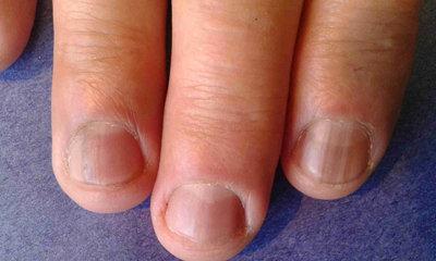 Melanoniquia en dos dedos de una mano