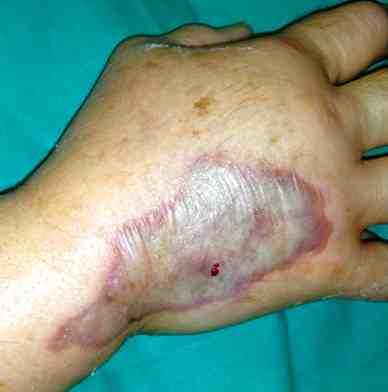 Las uñas se exfolian del lecho de uña el tratamiento