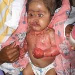 Trisomía 13 con síndrome de piel escaldada por estafilococo