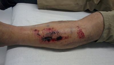 Fig. 1. Herida infectada por tétanos.