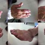 Imagen médica. Lesiones avanzadas en extremidades por enfermedad gotosa