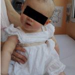Torticolis Paroxística Benigna. A propósito de un caso. Diagnóstico diferencial de la Torticolis en la Infancia